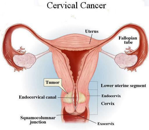 Cervical Cancer Symptoms  Vaginal Cancer Treatment