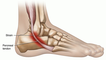 strained tendon in foot healthcare online