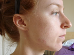 Hard Lump on Jaw Line, What's Wrong With Me? | Healthcare-Online