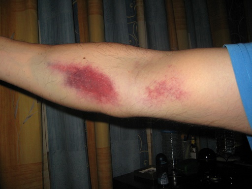Bruising After Blood Test Causes And Dealing Methods